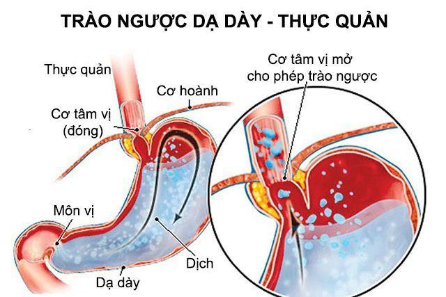 trao-nguoc-da-day-gay-viem-hong-nhu-the-nao-2