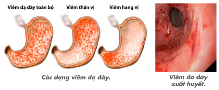 benh-viem-niem-mac-da-day-co-nguy-hiem-khong-3