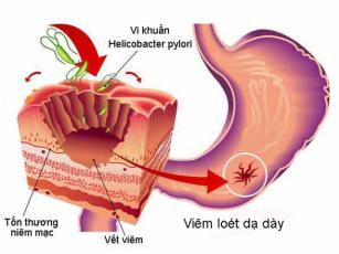 cơ chế điều trị bệnh viêm loét dạ dày Hp