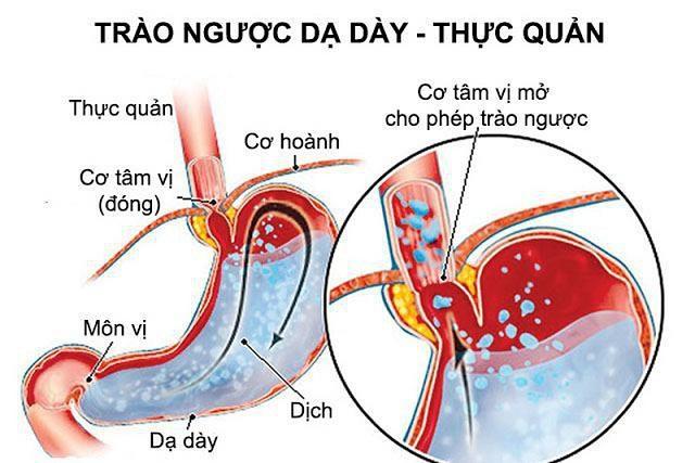 Phỏng vấn bác sĩ Nguyễn Thị Tuyết Lan về cơ chế điều trị bệnh trào ngược dạ dày thực quản bằng Đông y