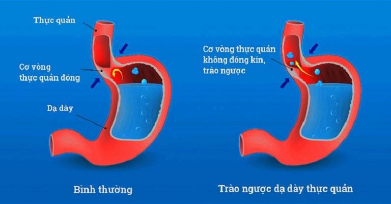Trào ngược dạ dày xảy ra do sự mất cân bằng dịch vị