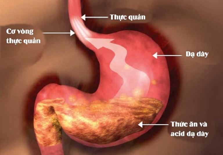 Trào ngược dạ dày tên khoa học là Gastroesophageal Reflux Disease (GERD)